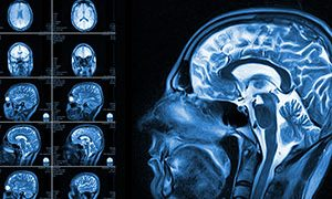 Truths and Myths About Your Aging Brain
